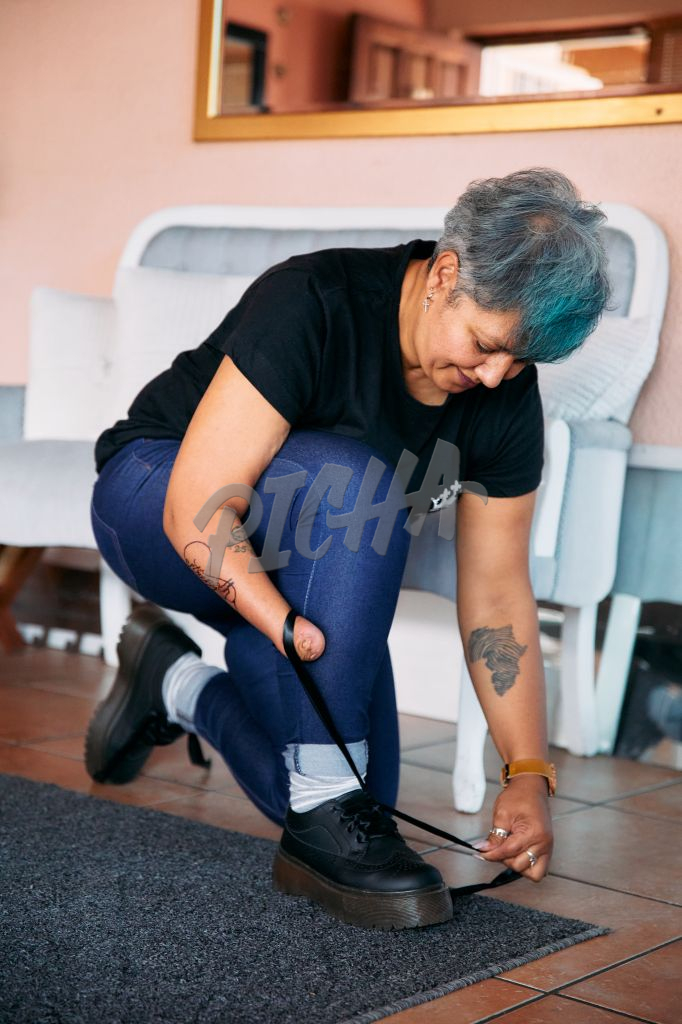Woman with one arm tying shoe laces