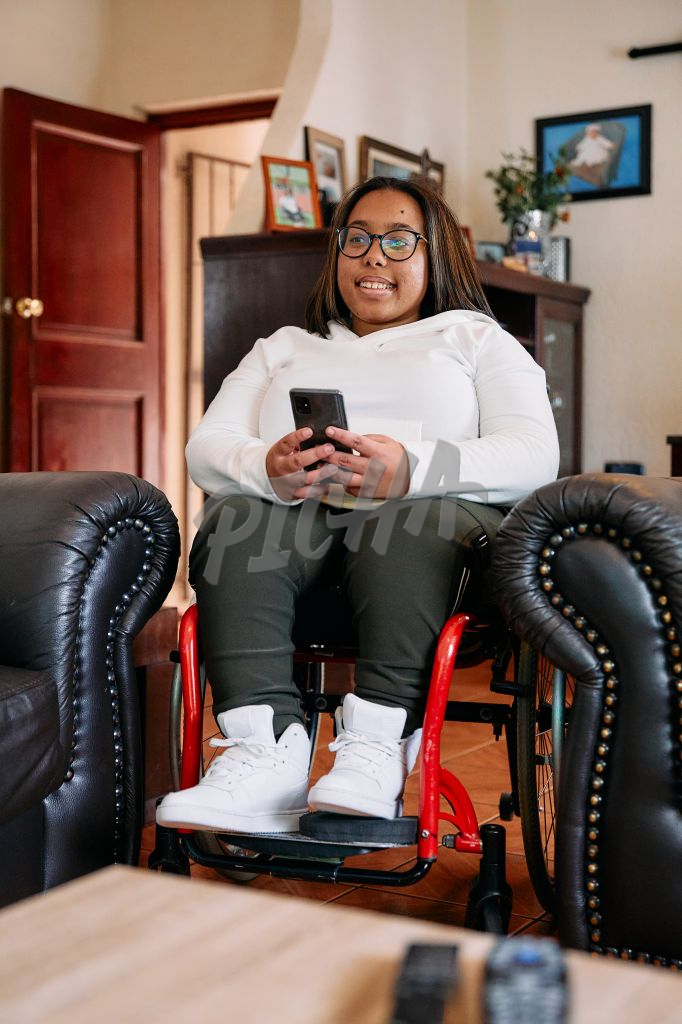 Young Woman with a disability smiling in her living room